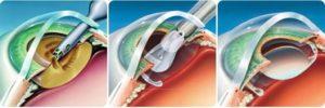 Как получить квоту на замену хрусталика глаза при прессбиопии