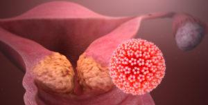 Бывает ли вирус папиломы человека наследственным